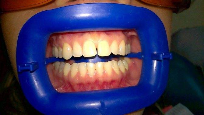Чем опасен налет курильщика на зубах: действенные методы очистки от никотина и табачных смол