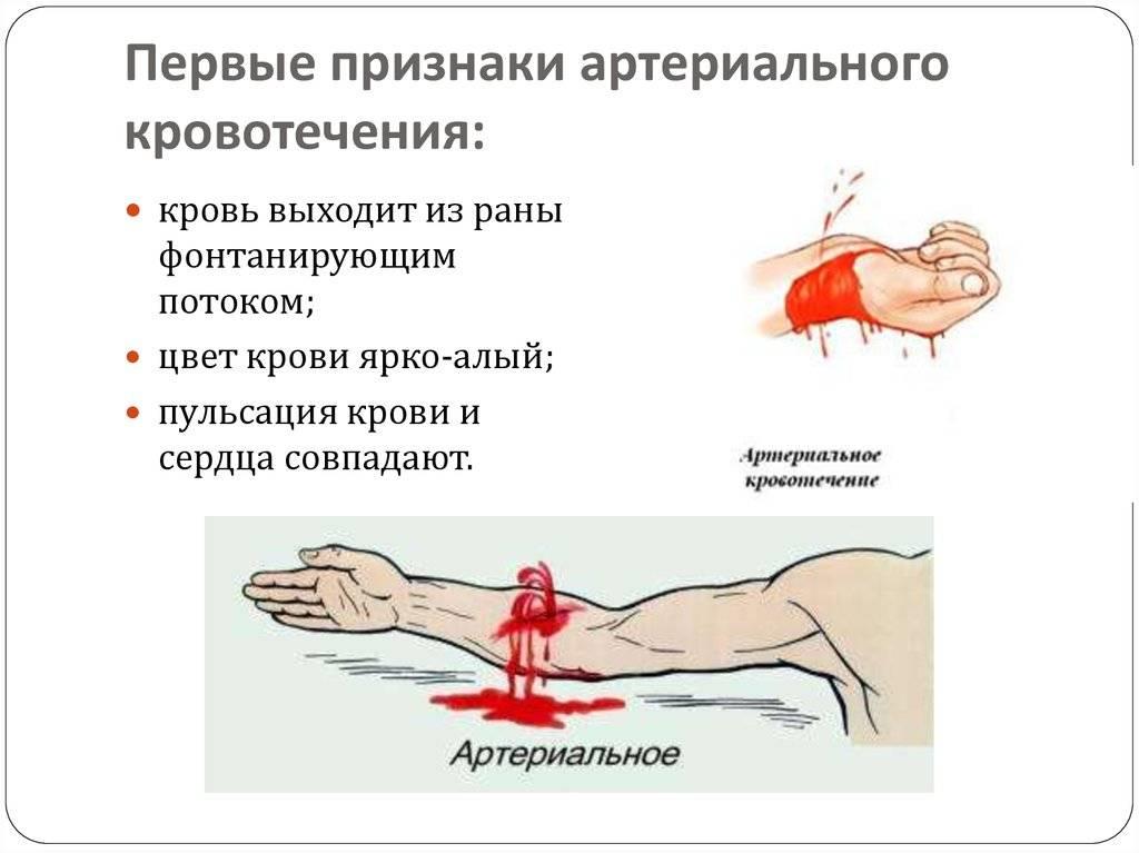 Плохо сворачивается кровь: причины, симптомы, лечение