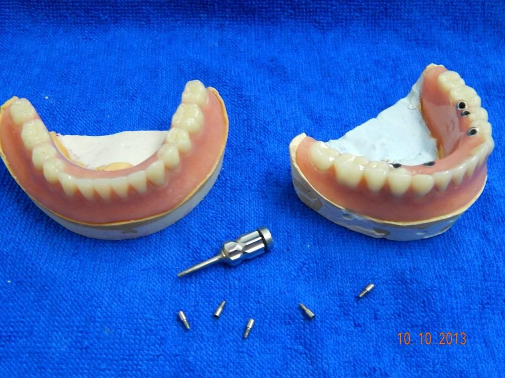 Классификация методик протезирования зубов, виды зубных протезов, как выбрать лучший
