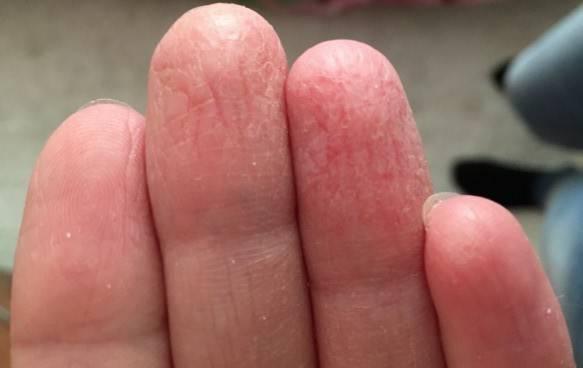 Трескается кожа на руках