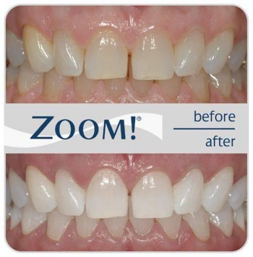 Сколько стоит отбеливание зубов у стоматолога и на дому