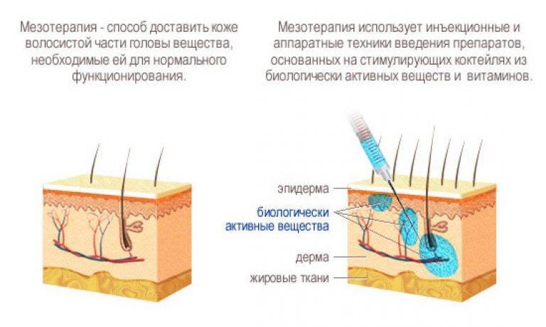 Все, что нужно знать об озонотерапии волосистой части головы