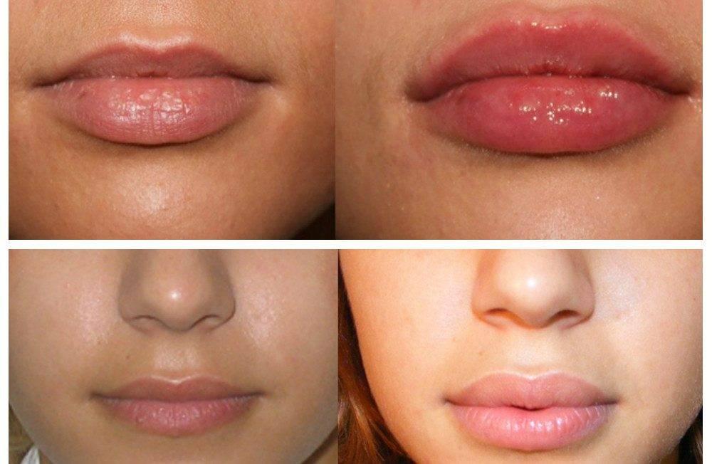 Почему у взрослого или ребенка белеют губы: основные причины и способы лечения этого состояния
