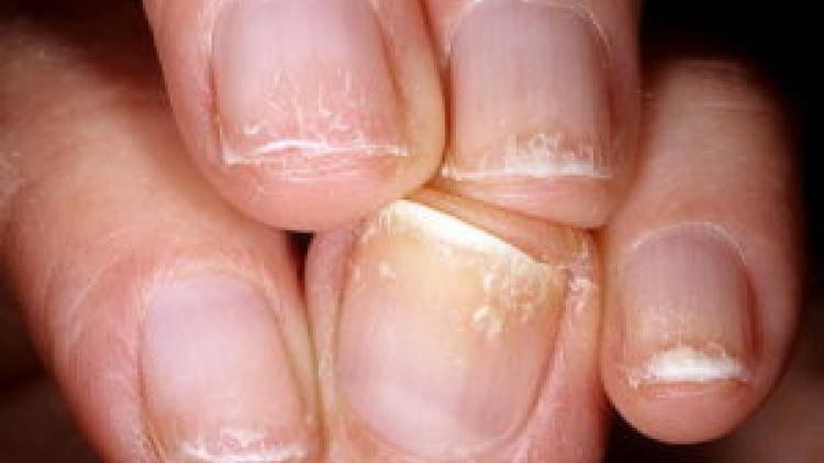 Что делать, если слоятся ногти на руках