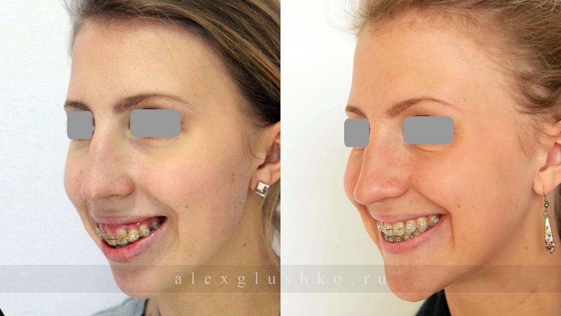 Расширение челюсти