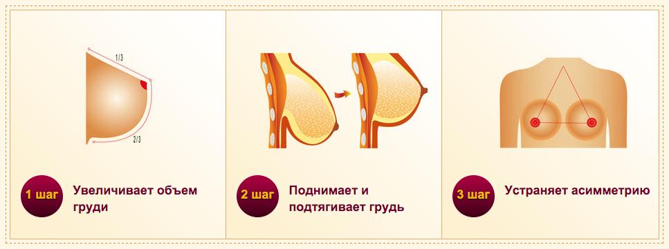 Виды и особенности подтяжки груди без установки имплантов