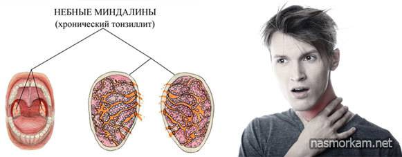 Причины неприятного запаха из носоглотки и изо рта при тонзиллите, лечение и как избавиться