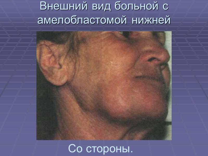 Амелобластома челюсти — виды, симптомы и лечение