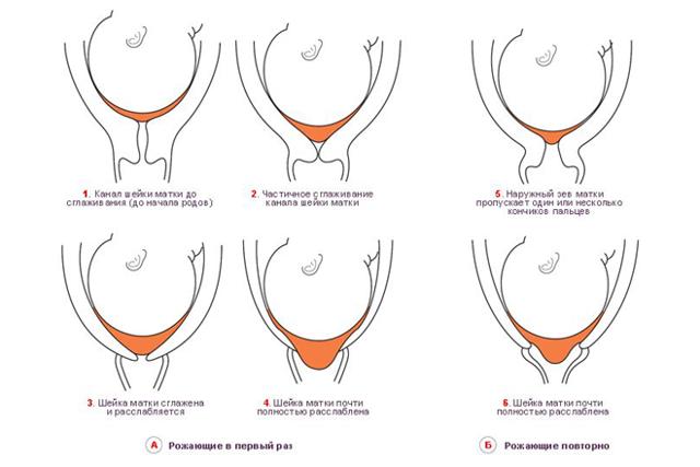 Укорочение шейки матки: всегда ли есть опасность для беременности?