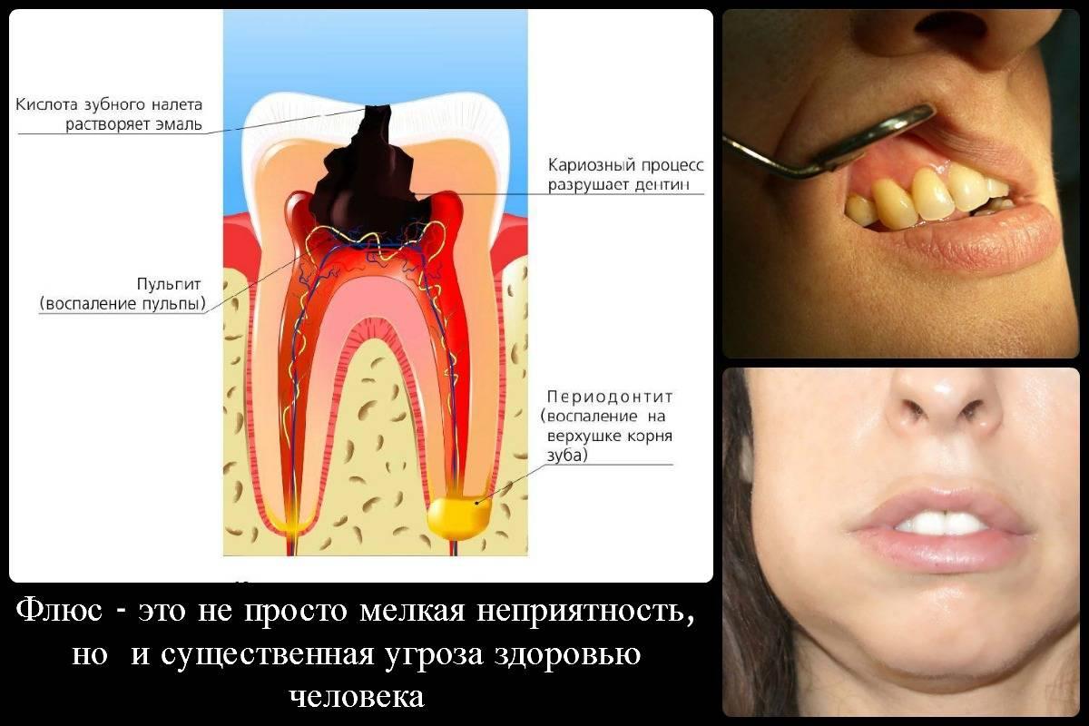 Воспаление надкостницы зуба: причины, симптомы, лечение