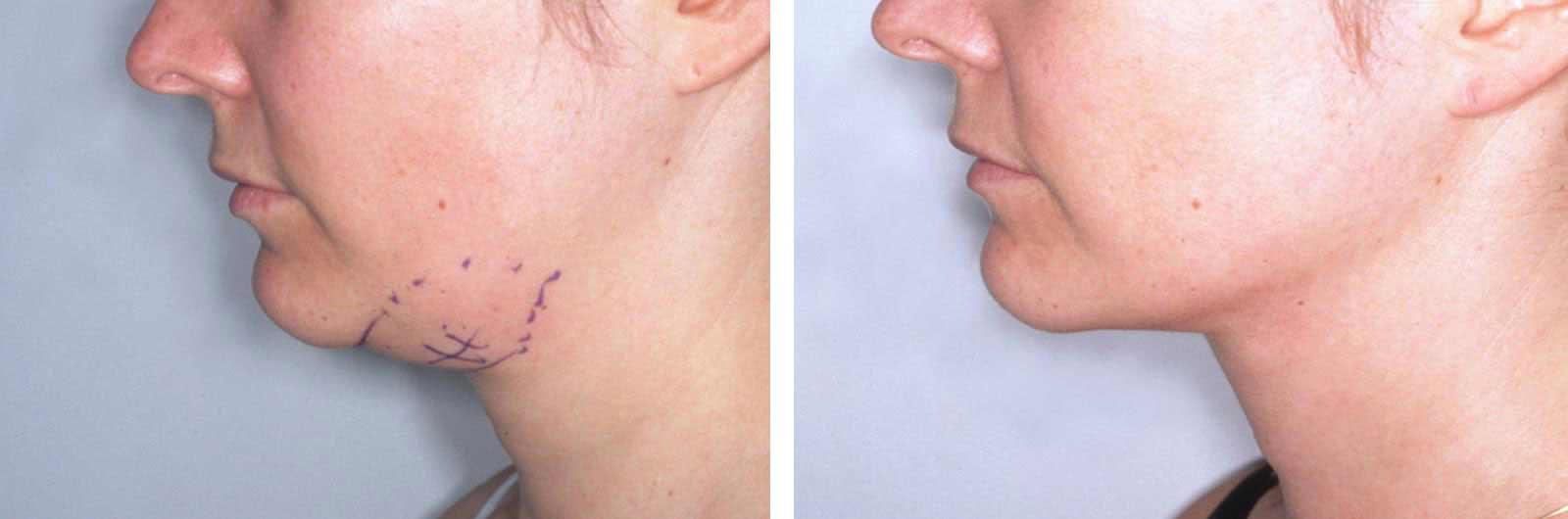 Диета после удаления аденомы слюнной железы