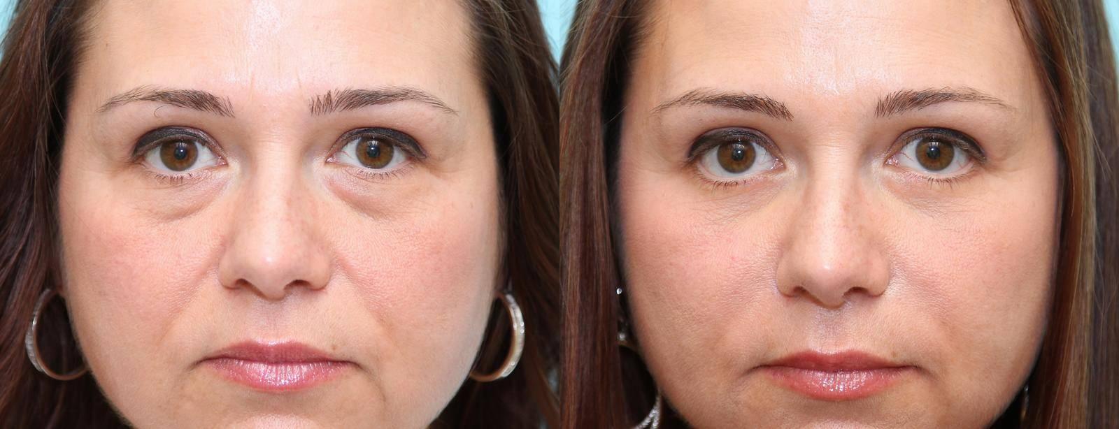 Что такое биоревитализация кожи вокруг глаз, кому подойдет и какой эффект даст