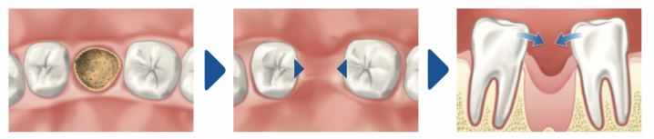 В десне остался осколок после удаления зуба — каковы симптомы проблемы и что делать?
