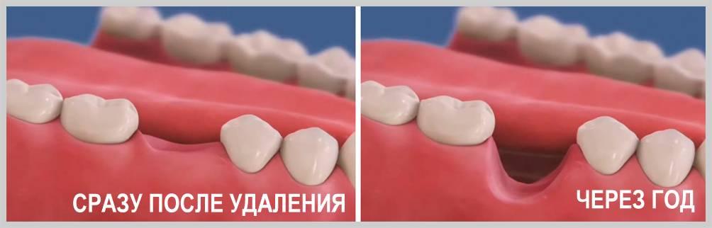 Что делать, если после удаления зуба в десне остался осколок, выйдет ли он сам?