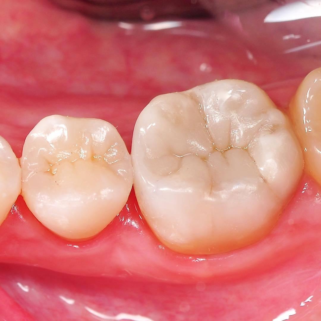 Кариес на передних зубах – причины, симптомы, виды, методы лечения