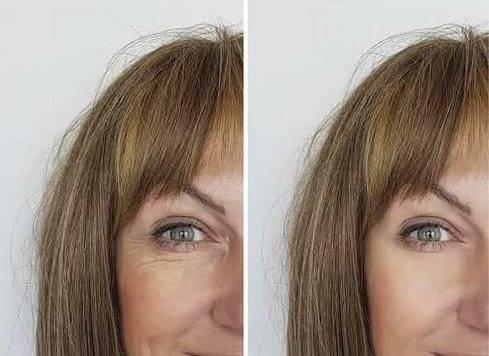 Гепариновая мазь от морщин — применение и отзывы косметологов