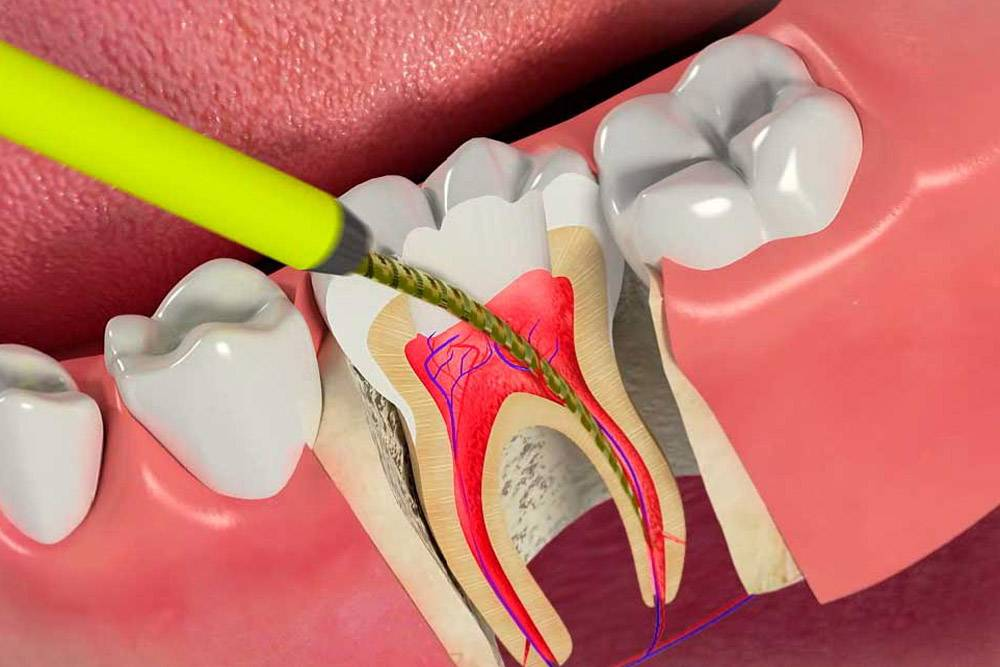 Выбор пломбы для коренных зубов