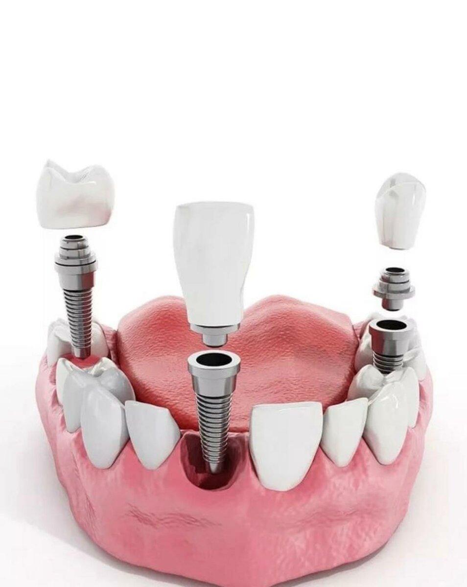 Какие импланты зубов лучше для длительного использования