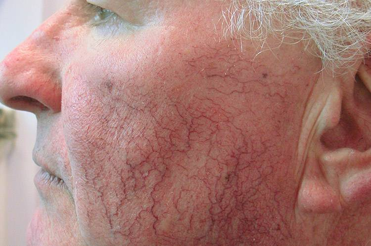 Кожные болезни у человека: фото, причины и симптомы