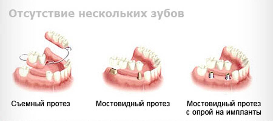 Какие протезы лучше поставить при частичном отсутствии зубов: фото-обзор съемных и несъемных зубных конструкций
