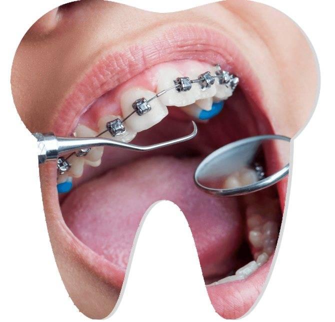 Зачем на зубах эти непривлекательные аксессуары? для чего нужны брекеты