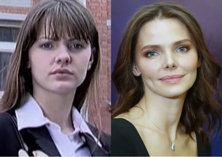 Ольга бузова — фото до и после пластики носа, губ, скул. как похудела, какие пластические операции делала