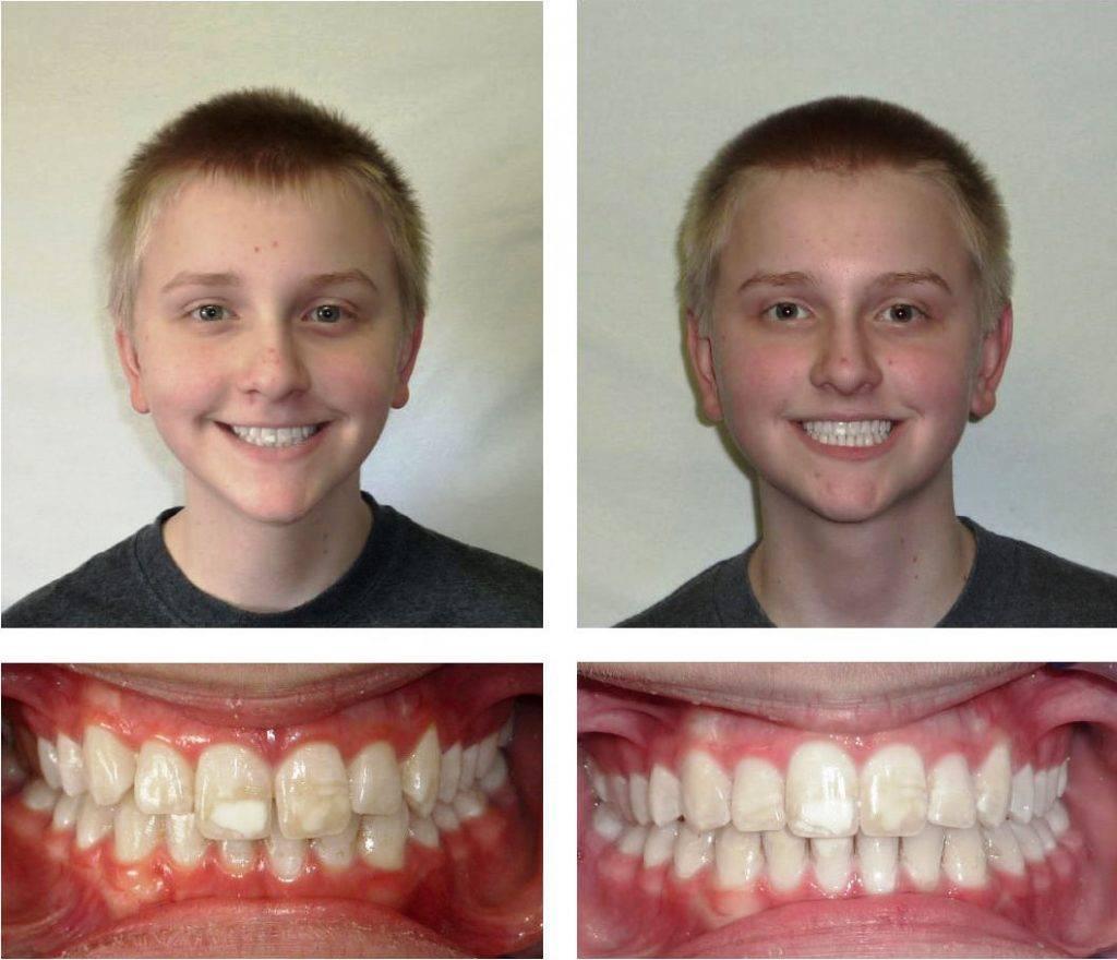 Зубные пластинки — безопасный и безболезненный способ исправления прикуса