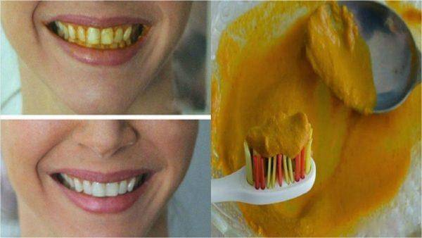 Как отбелить зубы от желтизны
