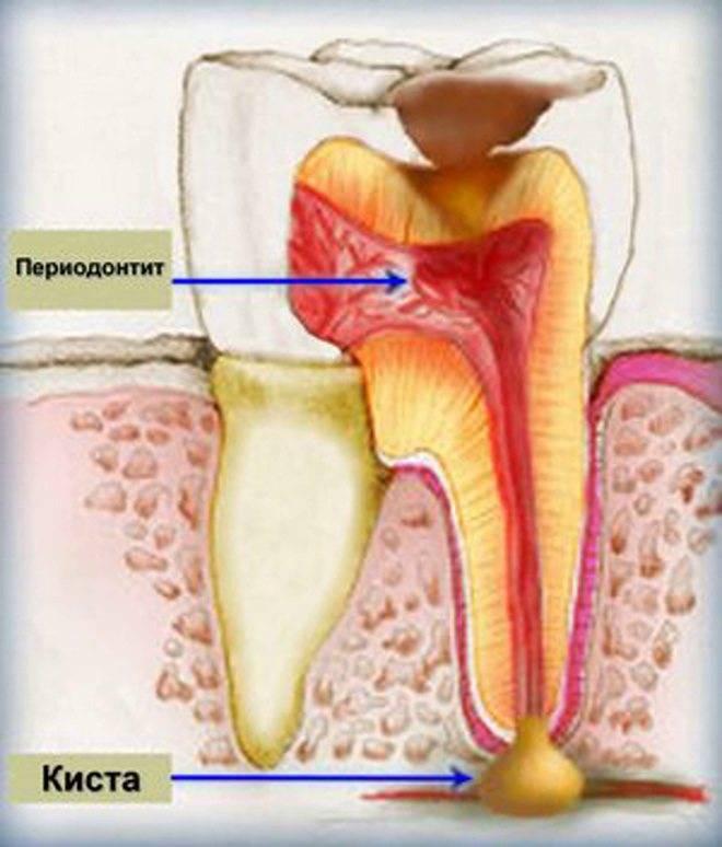 Воспаление костной ткани зуба лечение народными средствами