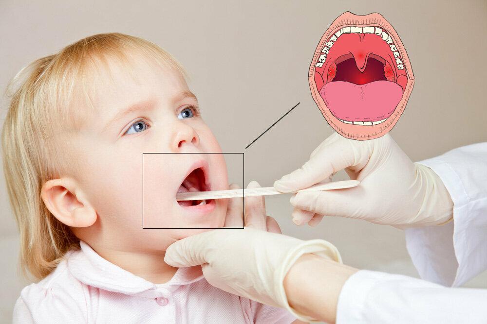 Лечение стоматита в домашних условиях у детей