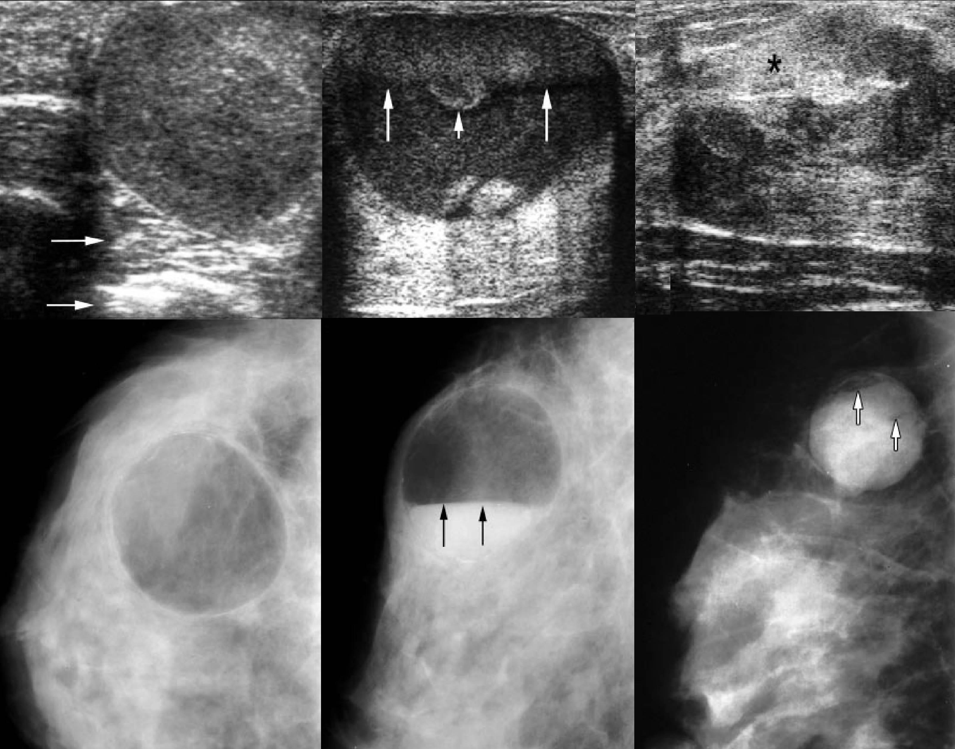 Что такое гипоэхогенные и анэхогенные образования в груди