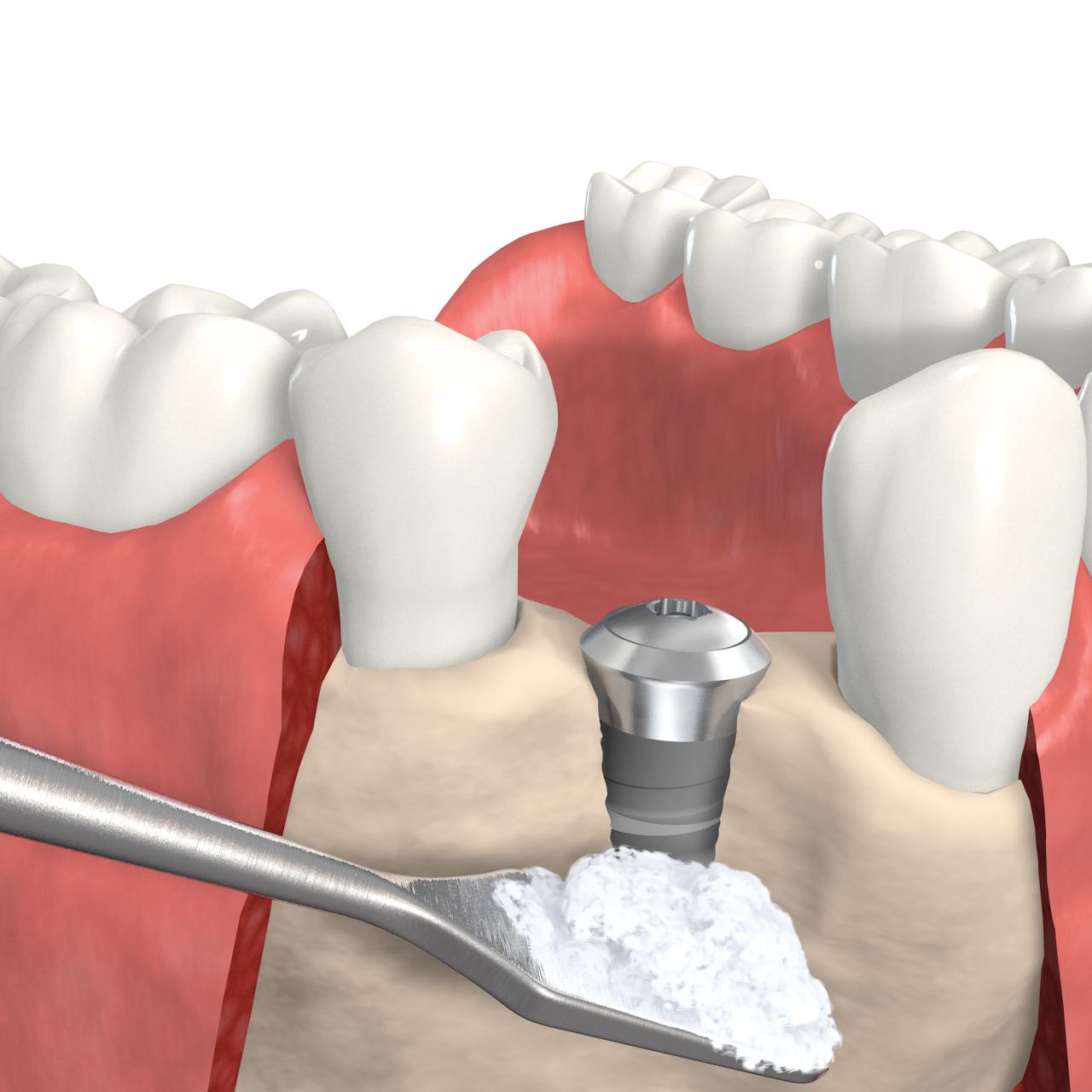 Все, что нужно знать пациенту о костной пластике