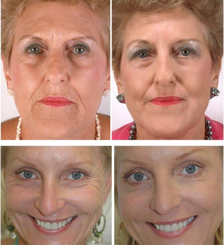 Методика дот-омоложения с фото до и после процедуры