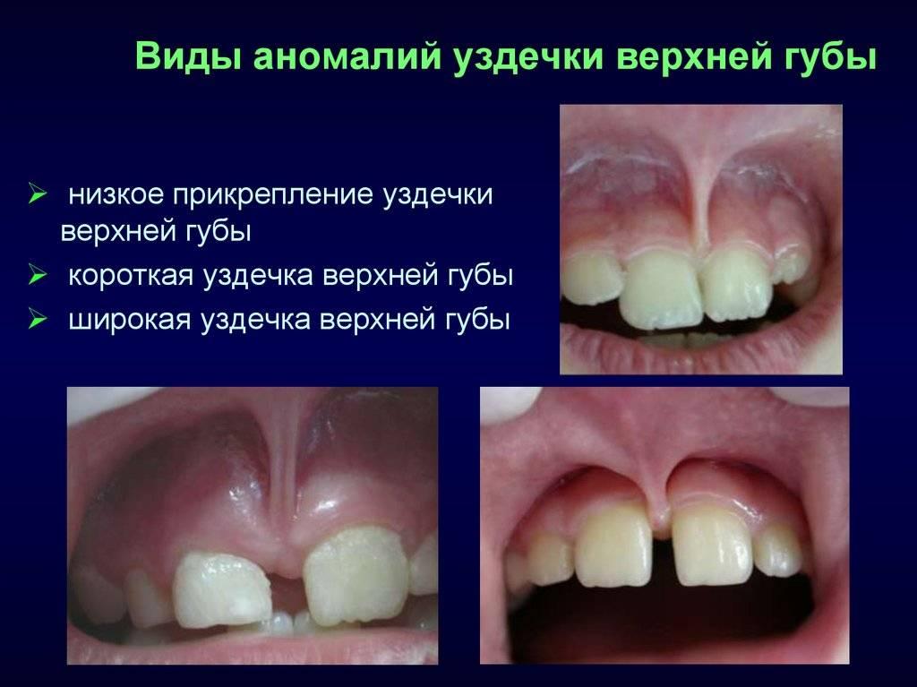 Пластика и удаление уздечки верхней губы: лезером или скальпелем? у детей и взрослых +видео до и после