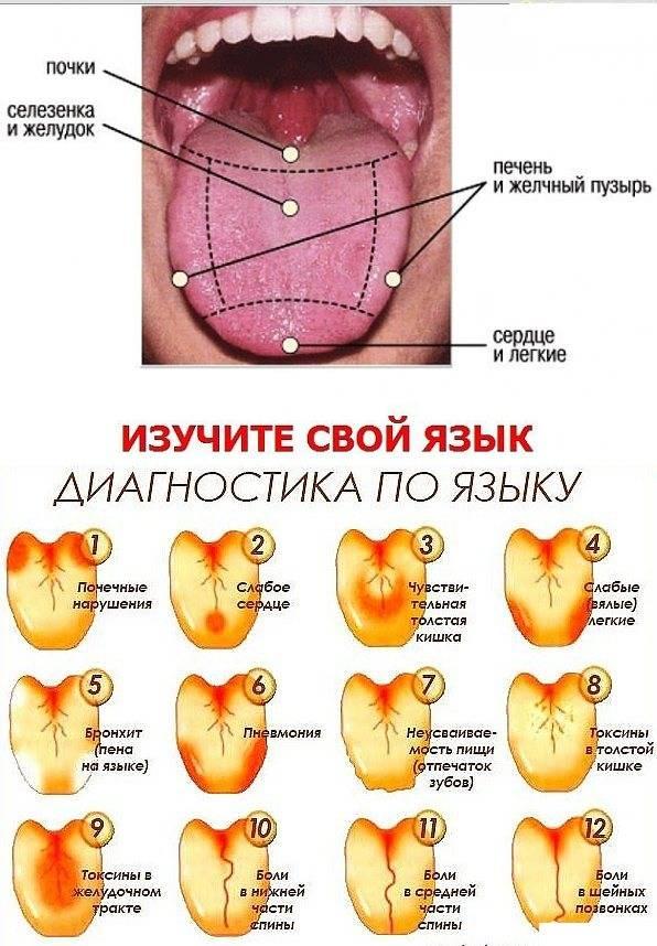 Желтый налет на языке у взрослых и детей, причины и лечение