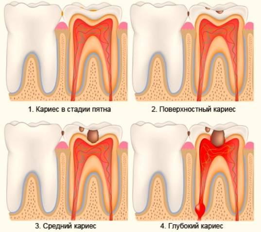 Что делать, если зубы гниют до десны: чистка, удаление и последствия для организма