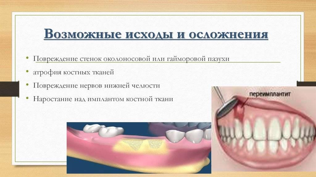 Какие бывают методы имплантации зубов?
