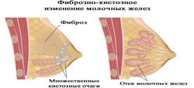 Инволюция молочных желез