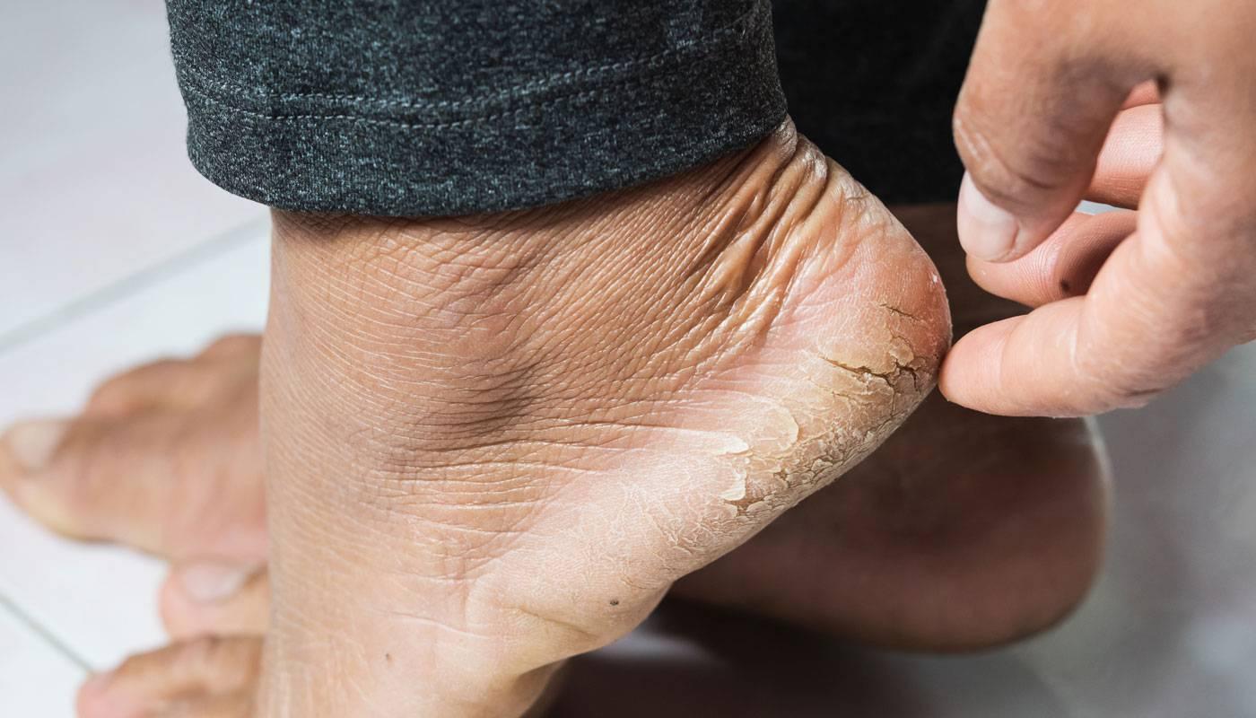 Средства для увлажнения кожи стоп и пяток