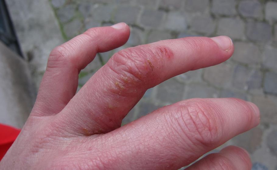 Дисгидротическая экзема кистей рук — лечение, причины, симптомы