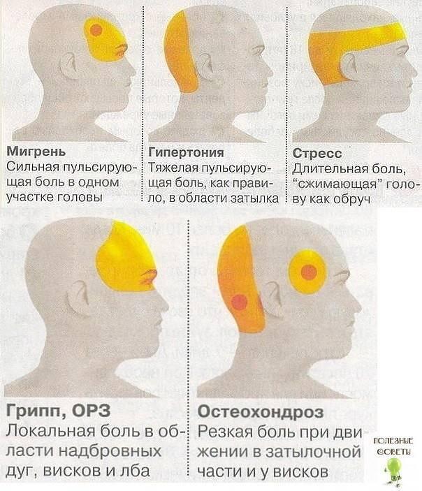 Что вызывает возникновение болей в области бровей, методы диагностики и лечения