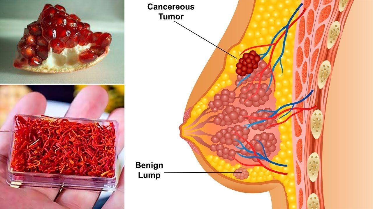 Почему возникает кровотечение из сосков?