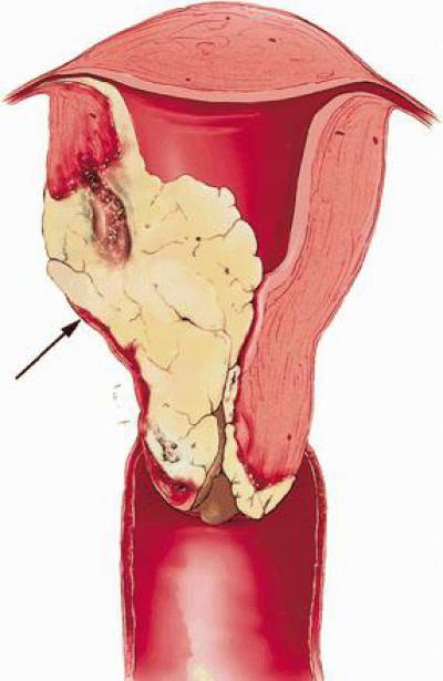 Саркома матки: симптомы и что это такое?