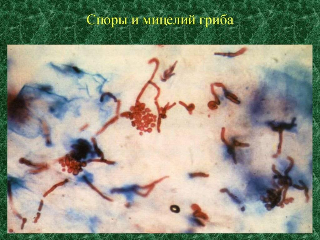 Споры и мицелий в мазке молочница