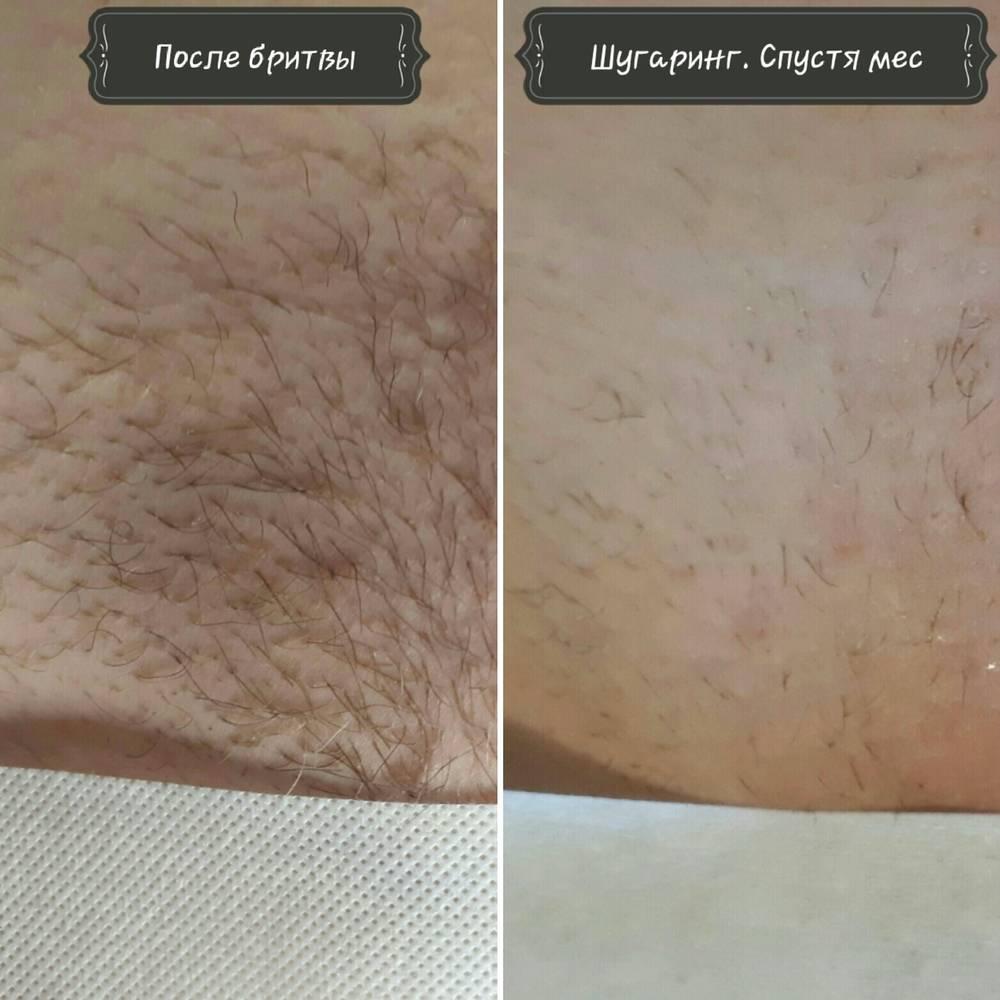 Биоэпиляция: что это такое, плюсы и минусы. биоэпиляция — удаление волос паста для биоэпиляции