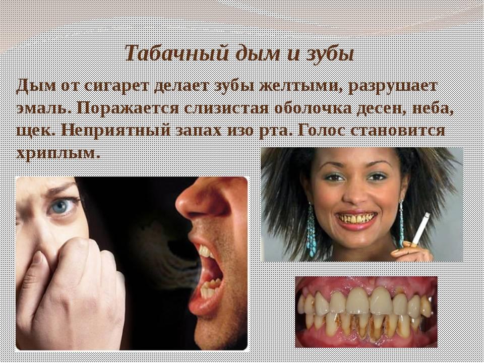 Сигареты после удаления зуба — стоит ли?