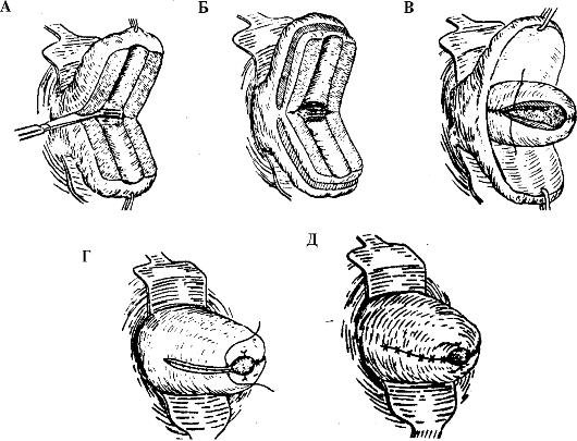 Как проводится ампутация шейки матки по штурмдорфу?