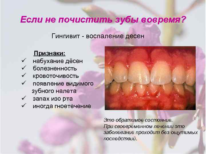 Кровоточат десны при чистке зубов – причины и что делать