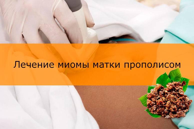 Эффективно ли лечение фибромиомы матки народными средствами?