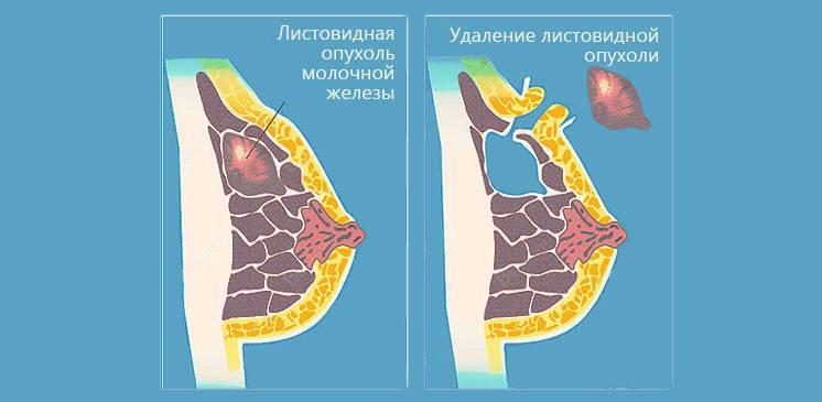 После удаления фиброаденомы молочной железы